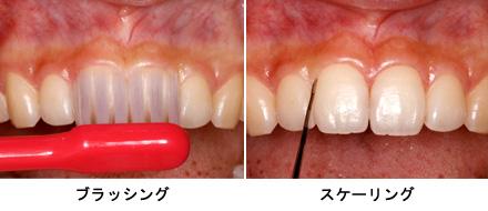 歯ブラシの当て方の画像