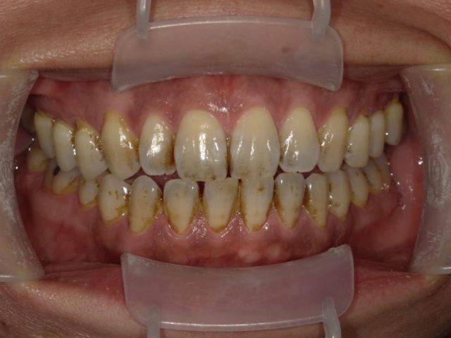 八王子レイス歯科クリニック歯科衛生士コラム外因性の歯の汚れの写真