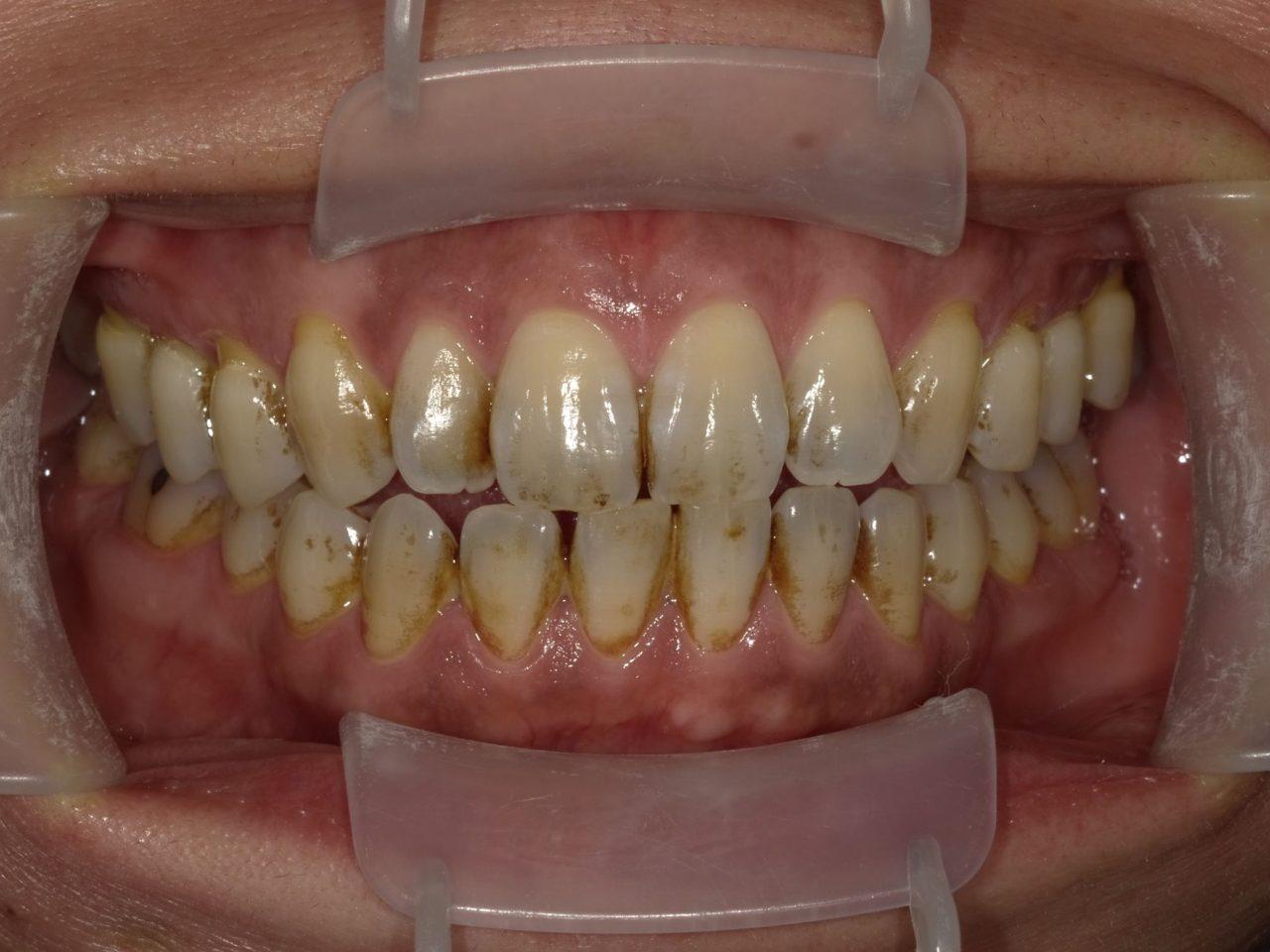 レイス歯科クリニック外因性の歯の着色例