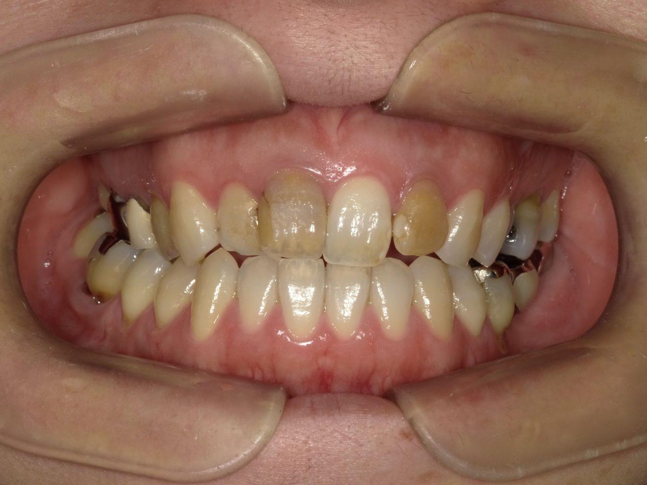 レイス歯科クリニック内因性の歯の着色事例