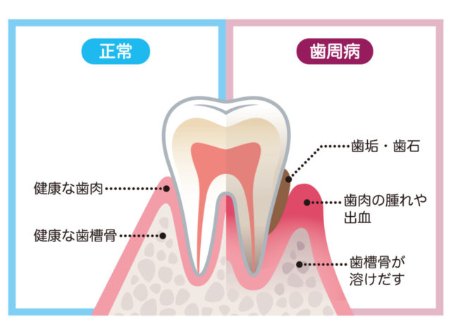 八王子レイス歯科クリニック 歯周病のイメージ画像