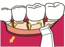 八王子レイス歯科クリニックフラップ施術の流れ 歯肉を開く