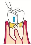 八王子レイス歯科クリニック歯肉より中の方に入ってしまった歯石の除去イメージ