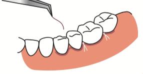 八王子レイス歯科クリニックフラップ施術の流れ 抜糸