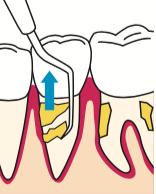 八王子レイス歯科クリニックフラップ施術の流れ 歯石を目視で徹底洗浄