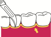 八王子レイス歯科クリニックフラップ施術の流れ 歯肉切開