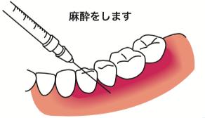 八王子レイス歯科クリニックフラップ施術の流れ 麻酔