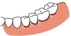 八王子レイス歯科クリニックフラップ施術の流れ 歯肉を戻して縫う