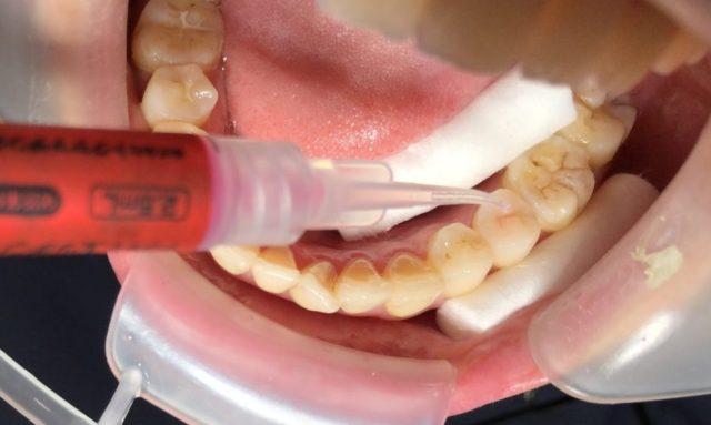 八王子レイス歯科クリニックシーラントの進め方、薬を付ける