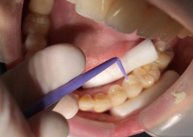 八王子レイス歯科クリニックシーラントの進め方、シーラント塗布