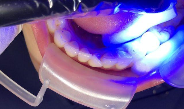 八王子レイス歯科クリニックシーラントの進め方、光をあてて固める
