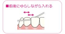 八王子レイス歯科クリニック デンタルフロスでのケア方法
