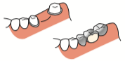 八王子レイス歯科クリニック歯科衛生士コラム 歯科医療でのカウンセリングの大切さ ブリッジ治療のイラスト