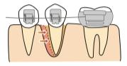 八王子レイス歯科クリニック歯科衛生士コラム 歯科医療でのカウンセリングの大切さ 矯正治療のイラスト