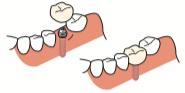 八王子レイス歯科クリニック歯科衛生士コラム 歯科医療でのカウンセリングの大切さ インプラント治療のイラスト