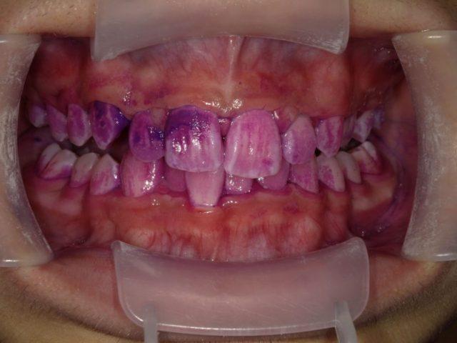 八王子レイス歯科クリニック|歯の染出しについて|赤い部分が新しいプラーク、青い部分が2,3日たっているプラーク