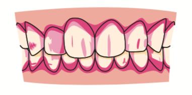 八王子レイス歯科クリニック|歯の染出しについて|磨けていない歯が赤くなる