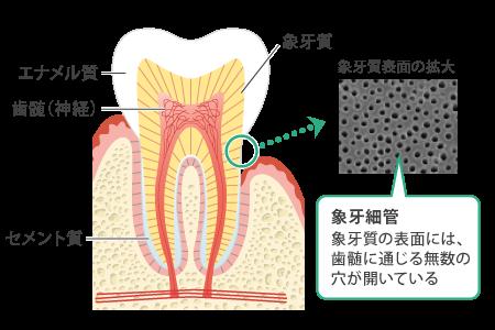 八王子レイス歯科クリニック 知覚過敏について 歯の構造と知覚過敏が起きる仕組みの図2