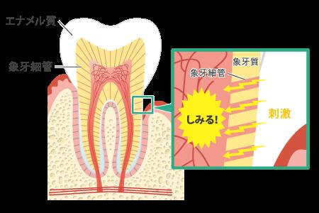 八王子レイス歯科クリニック 知覚過敏について 歯の構造と知覚過敏が起きる仕組みの図1