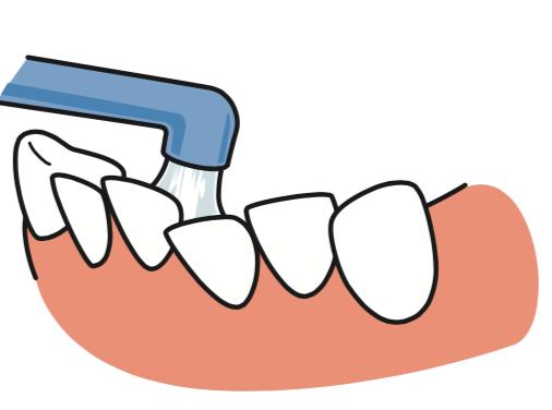 八王子レイス歯科クリニック ワンタフトブラシについて ワンタフトブラシで歯ならびの良くない部分を磨くイメージ画像