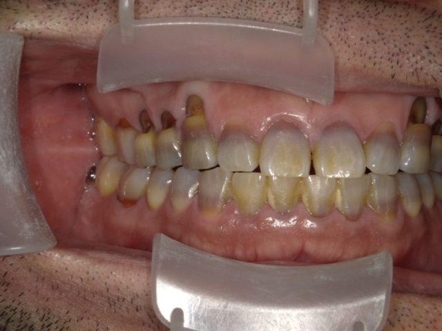 八王子レイス歯科クリニック 知覚過敏について 歯ぎしりやかみ合わせが原因で象牙質がむき出しになった画像