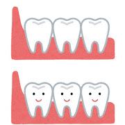 八王子レイス歯科クリニック 親知らずについて 親知らずがまっすぐ生えている状態のイラスト