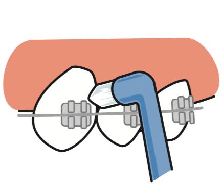 八王子レイス歯科クリニック ワンタフトブラシについて ワンタフトブラシで矯正している歯を磨くイメージ画像