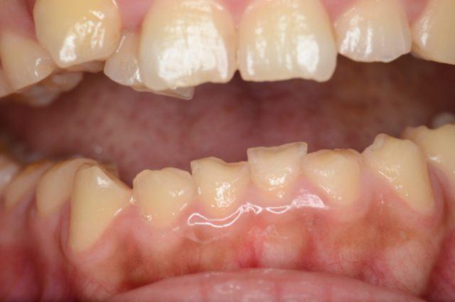 八王子レイス歯科クリニック 知覚過敏について 歯が溶けたことが原因で象牙質がむき出しになった画像