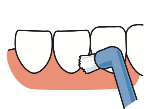 八王子レイス歯科クリニック ワンタフトブラシについて ワンタフトブラシで歯と歯の間、歯ぐきの境目を磨くイメージ画像
