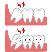 八王子レイス歯科クリニック 親知らずについて 親知らずが傾いて生えている状態のイラスト