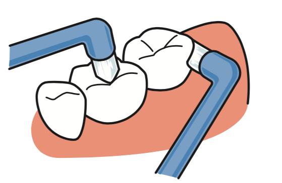 八王子レイス歯科クリニック ワンタフトブラシについて ワンタフトブラシで奥歯の裏側や噛み合わせの部分を磨くイメージ画像
