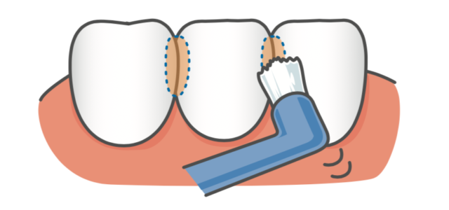 八王子レイス歯科クリニック ワンタフトブラシについて ワンタフトブラシで歯ぐきに炎症があるときには、優しくなぞるように動かす画像